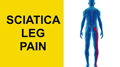 Sciatica Leg Pain From Herniated Disc in Lower Back - Sciatic Nerve Pain Relief