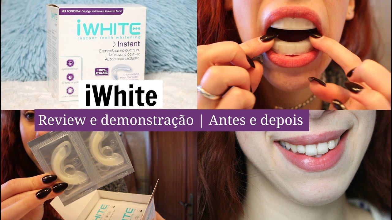 Iwhite Branqueamento Review E Demonstracao Antes E Depois Youtube