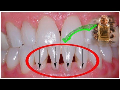 Что Делать, Если ОГОЛИЛАСЬ ШЕЙКА Зуба? Как Лечить Рецессию (опущение) Десны.