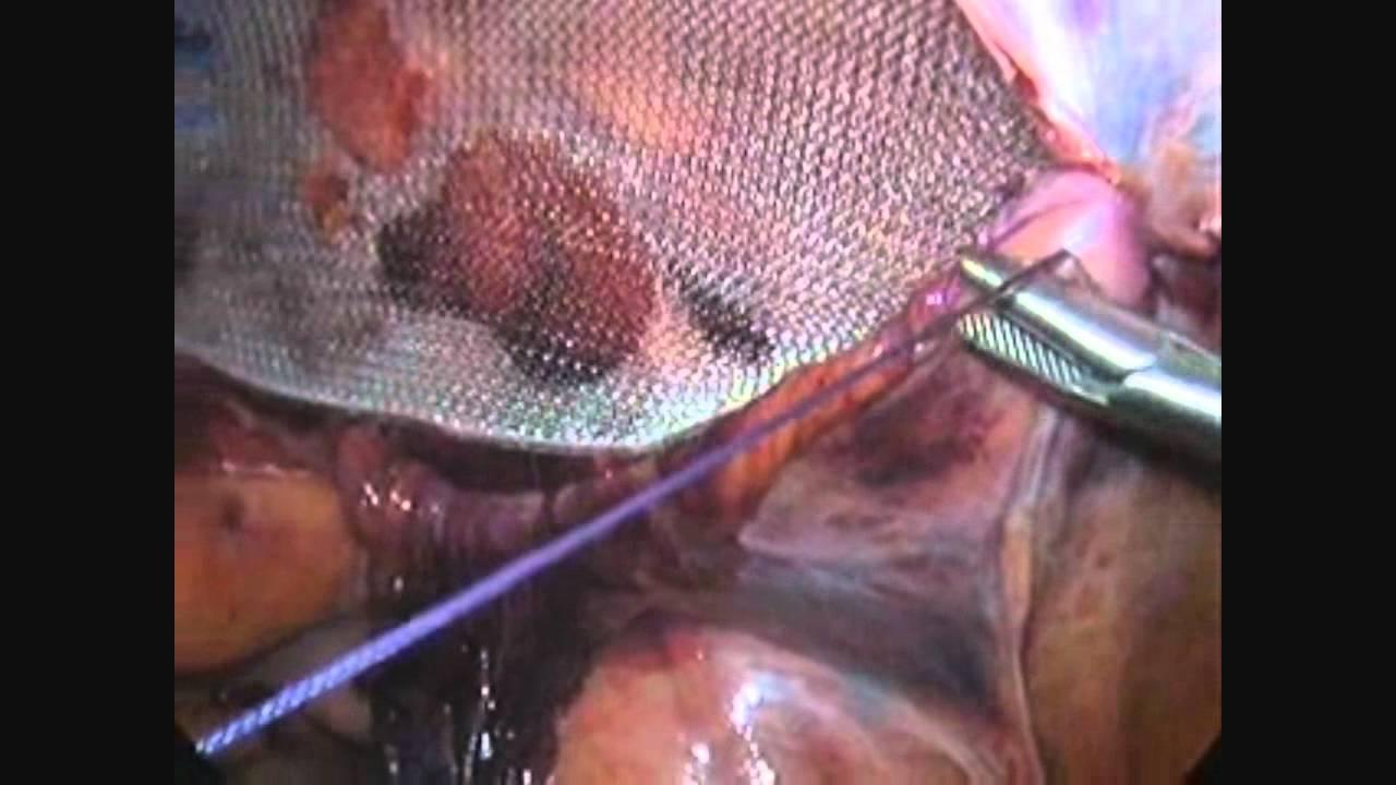 Inguinal hernia repair