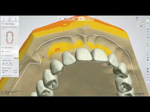 Dental Lab Life: Designing a Denture Using 3Shape