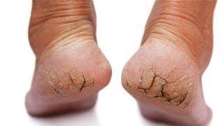 comment traiter ses pieds fendilles
