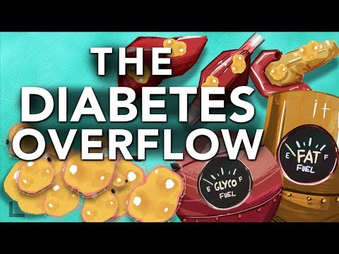 Obesity & Diabetes Explained: The Overflow Phenomenon