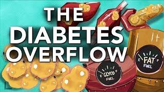 Obesity & Diabetes Explained: The Overflow Phenomenon