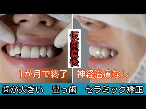 他人から見ればそれほど気にならないような歯だったかもしれませんが 自分では歯を見せて笑うたびに不格好な歯を見られているようで恥ずかしかったです。