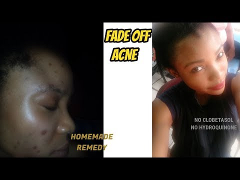 fade-off-dark-spot-using-this-homemade-remedy-|-essential-oils-put-into-good-use