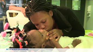 Opération réussie de deux sœurs siamoises camerounaises en France