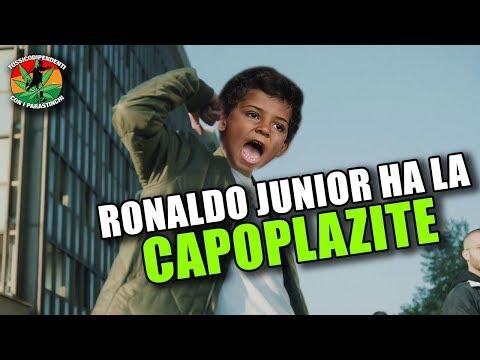 Ronaldo Junior ha la CAPOPLAZITE   UNA NUOVA MALATTIA  