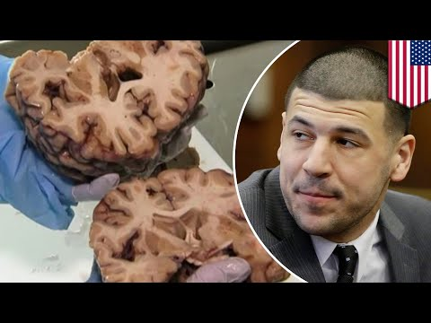 Research shows Aaron Hernandez's brain had severe damage with signs of CTE - TomoNews
