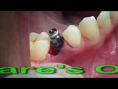Immediate Implant placement in Mental foramen area