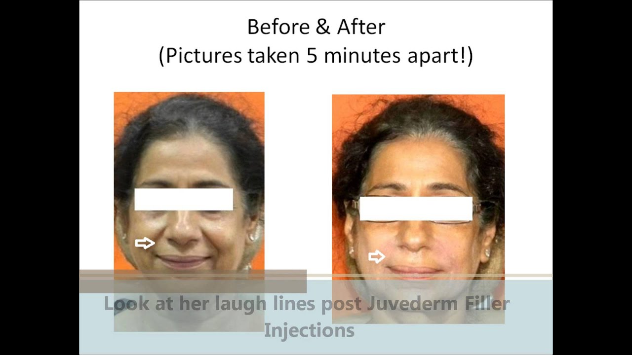 Botox and Fillers | Botox Treatment Cost in India | Facial