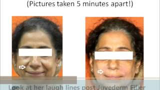 botox treatment   botox injection juvederm restylane in mumbai india by dr debraj shome