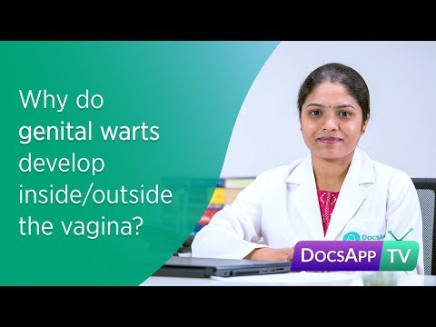 Why do Genital Warts develop inside/outside the Vagina?Treatment for Genital Warts #AsktheDoctor