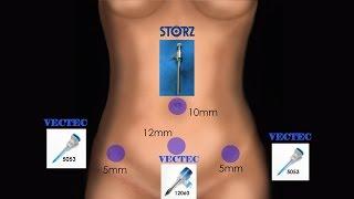 Лапароскопия. Миомэктомия (узел 10 см). Клипирование маточных артерий и воронко-тазовых связок.