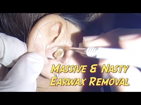 Thumbnail: Most Massive & Nasty Earwax Removal Ever