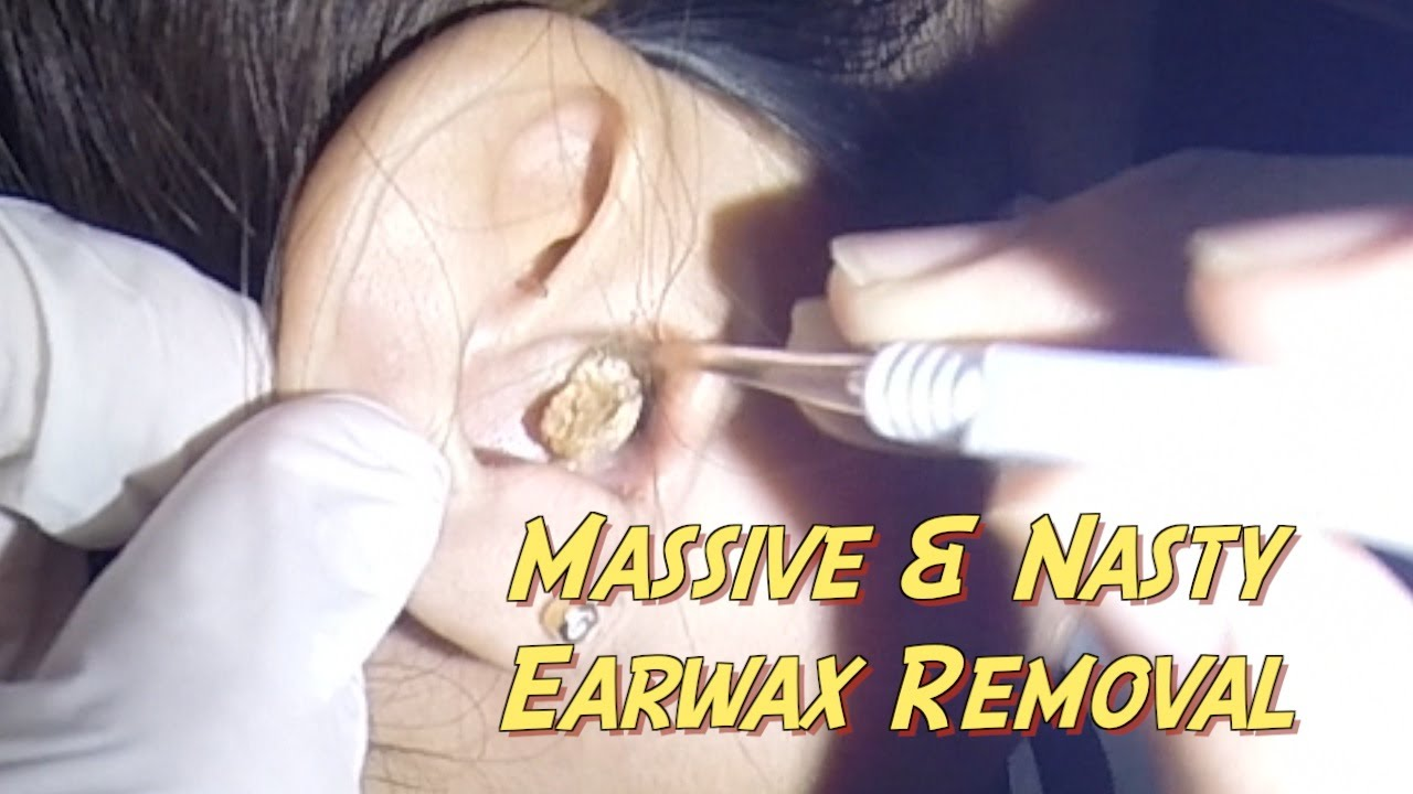 This earwax removal is WAY WORSE than any pimple popping video!