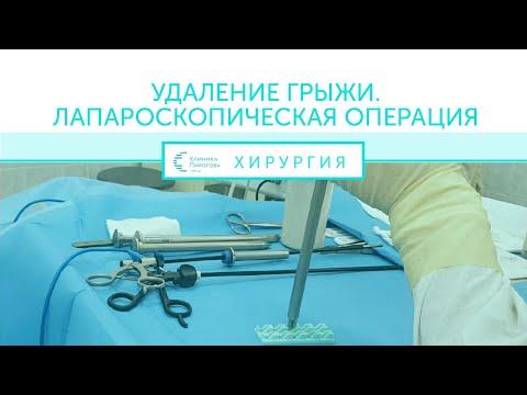 Удаление грыжи. Полостная операция. Натяжная лапароскопическая  герниопластика