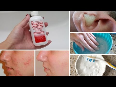 7 Surprising Uses for Hydrogen Peroxide