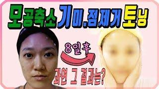 #2모공,기미,점,토닝 피부의 단계별 변화! 얼굴은 스미마셍 의느님은 만만세!