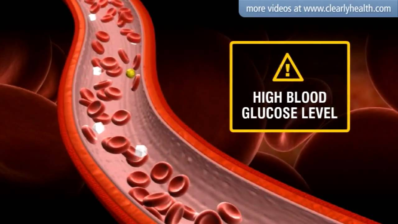 Diabetes Insulin S Side Effects Youtube