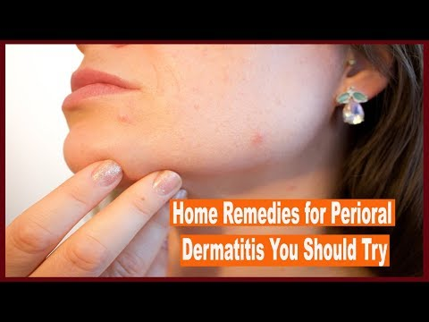home-remedies-for-perioral-dermatitis-you-should-try