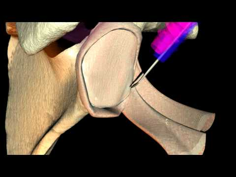 Soft Tissue manipulation using cloth simulation