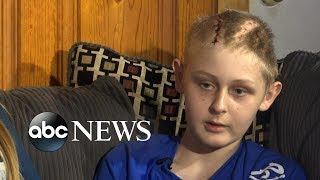Miraculous recovery for 13-year-old declared brain dead