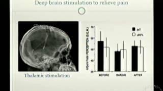 CAM Therapies: Neurostimulation and Acupuncture
