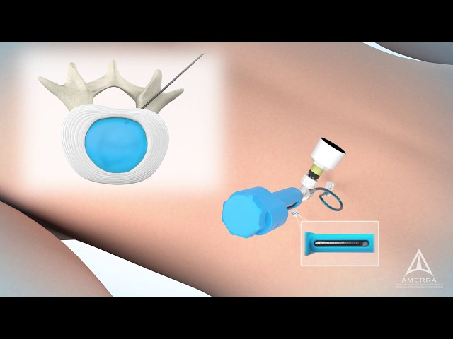 ReGelTech Surgical Procedure Animation