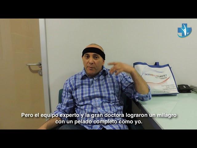 Trasplante Capilar Turquía - Testimonial Señor Massimiliano M. - Dra. Oyku Çelen/Skin Health Turkey