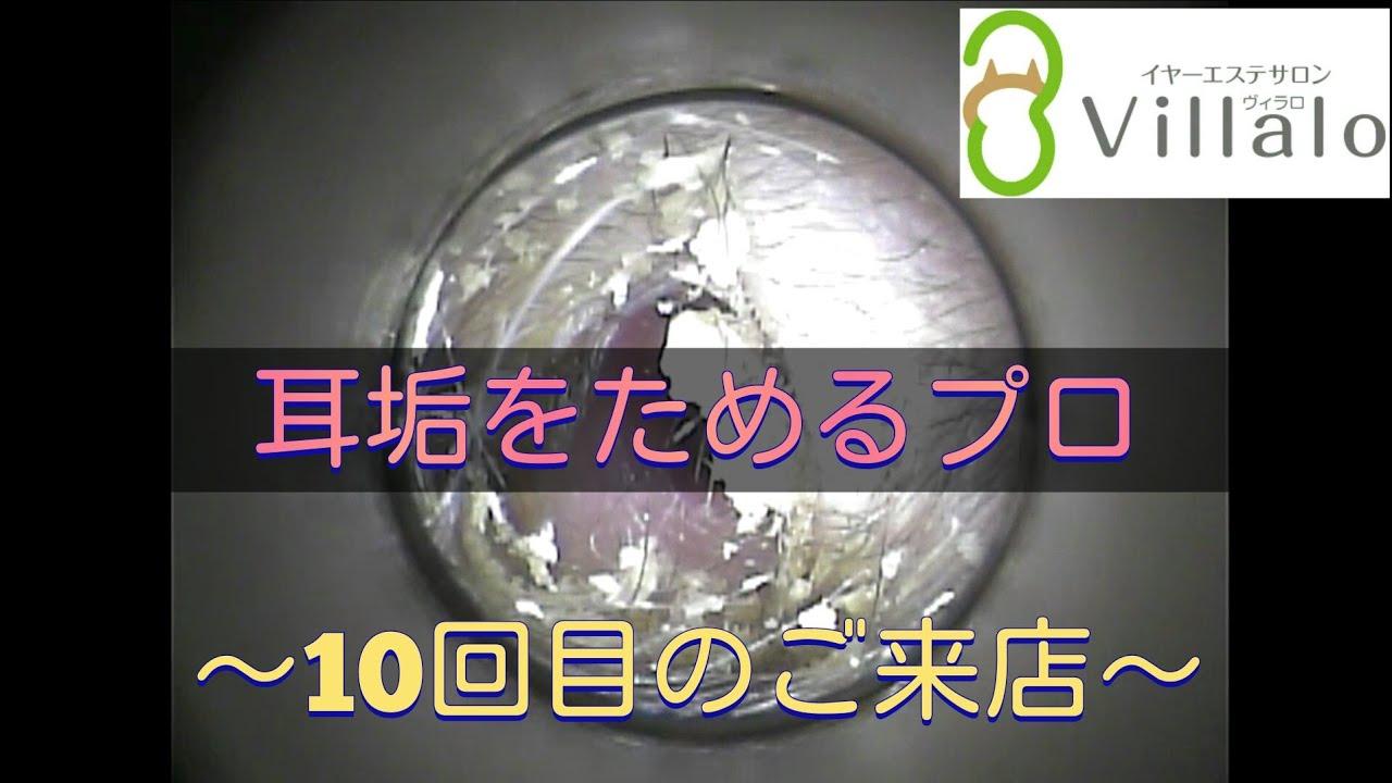 耳掃除動画vol.92「耳垢をためるプロ~10回目のご来店~」