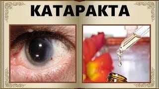 Лечение катаракты народными средствами. Необычный народный рецепт лечения.