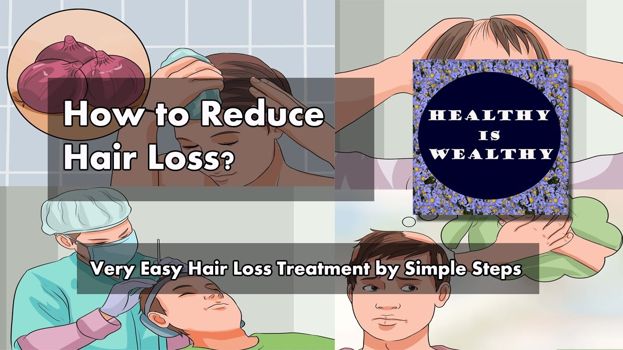 How To Reduce Hair Loss Very Easy Hair Loss Treatment By Simple Steps Youtube