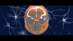 hqdefault - Diabetic Neuropathy Central Nervous System
