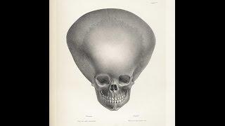 Трактат сравнительной френологии человека. Джозеф Вильмонт