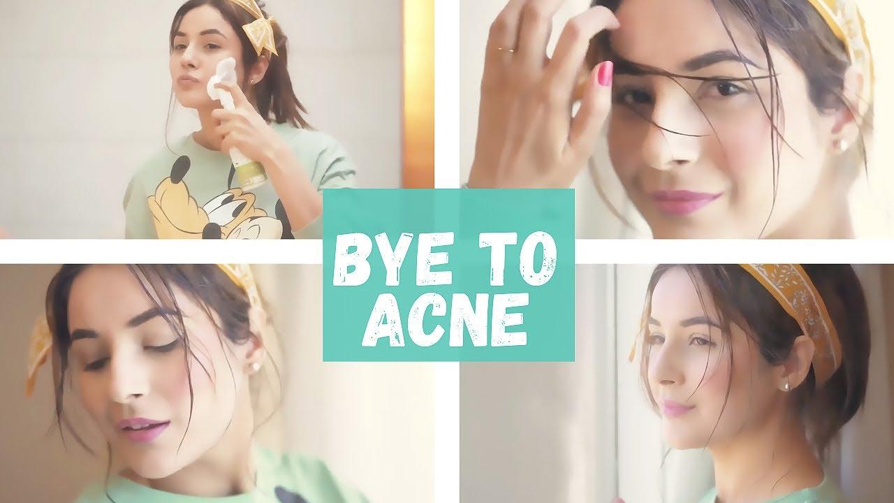 byeeeeee to acne!!!!!!!
