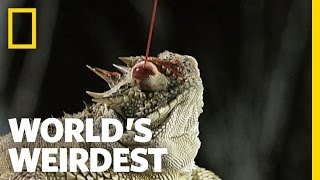 Blood Shooting Eyes | World's Weirdest