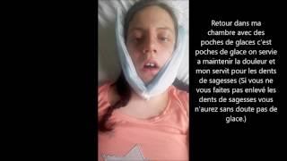 Opération chirurgie maxillo facial ☺