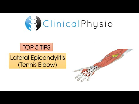 Top 5 Tips: Lateral Epicondylitis (Tennis Elbow)   Clinical Physio