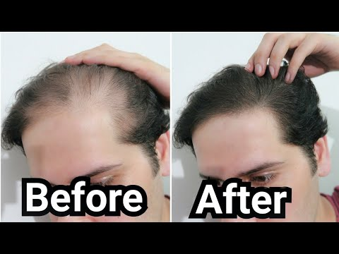 Download How I Grew Back my Hair with Rosemary Oil (My Results w/ Pictures/ Before & After - How To Use