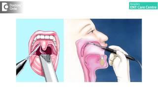 What types of surgery can cure snoring   Dr  Anita Krishnan