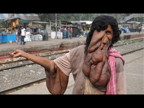 Real Life Elephant Man Needs Miracle Surgery to Save Life