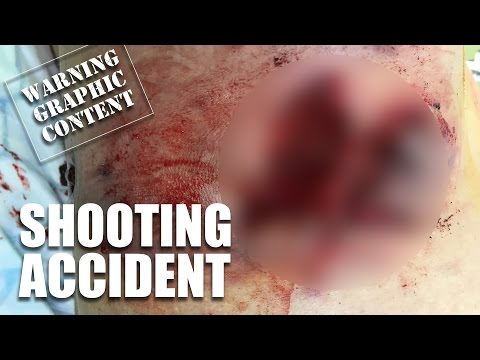 Shooting accidents - the insurance snap