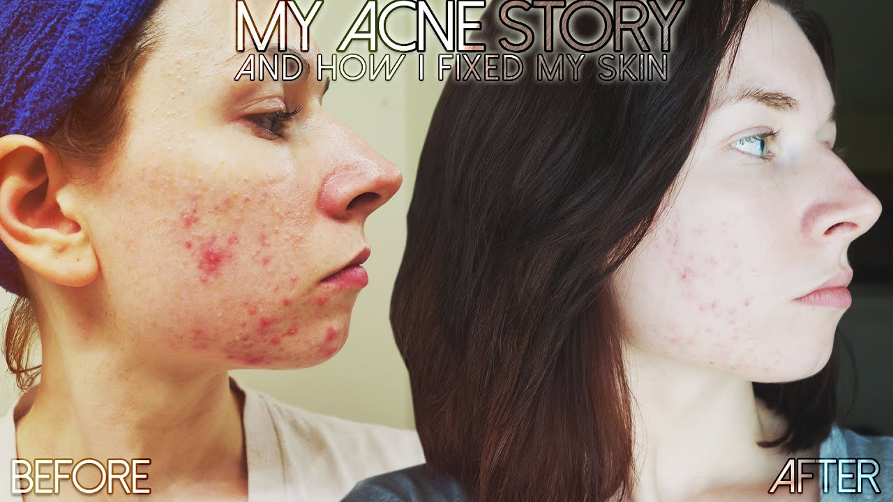 My Acne Story Skincare Routine For Acne Products To Treat Prevent Acne Youtube