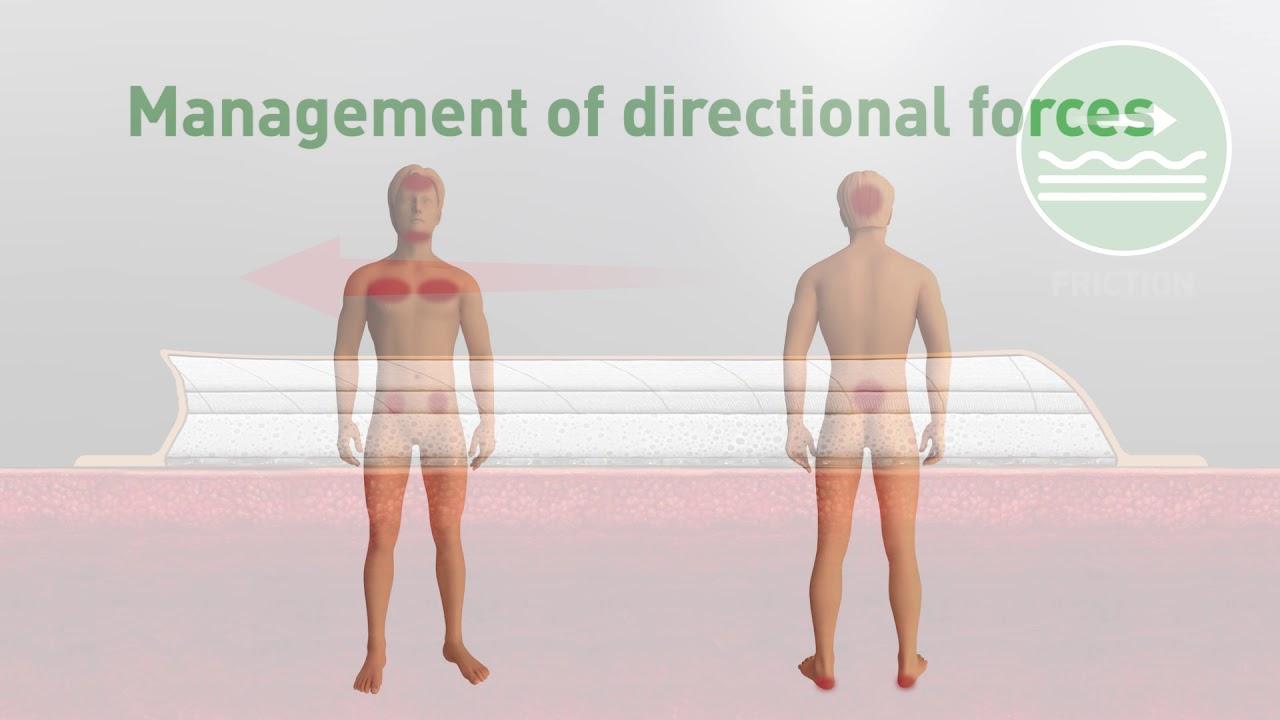 Mölnlycke Pressure Ulcer Prevention Animation
