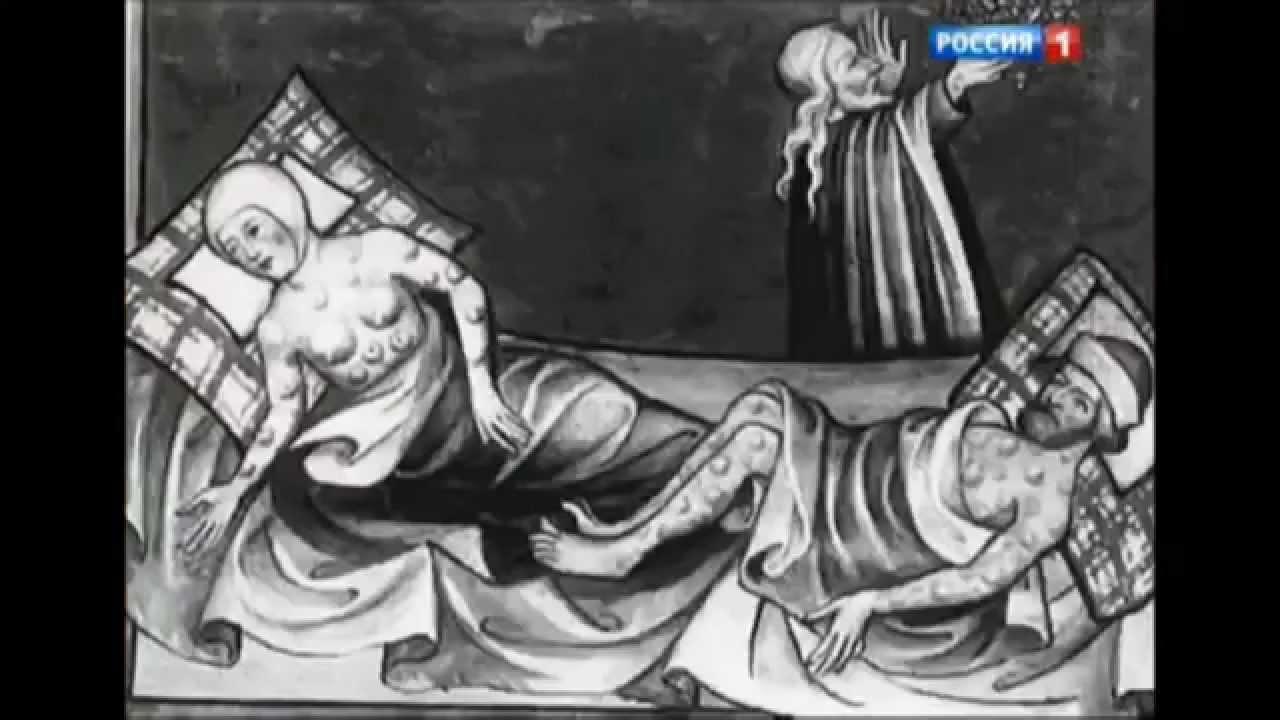 Лечение псориаза медикаментозными и народными средствами (видео)