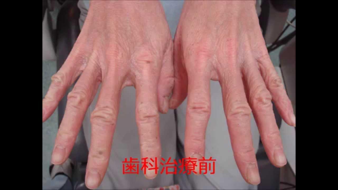 皮膚病 グロ 奇跡の歯科治療 歯科治療後の体の変化 皮膚炎編