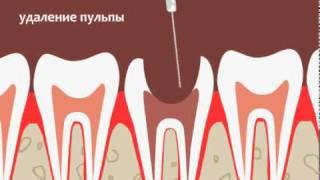 Хирургическое лечение пульпита(, 2010-10-06T10:56:32.000Z)