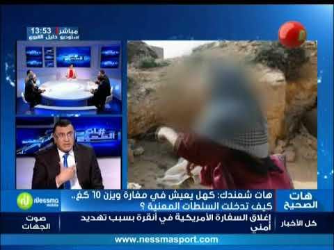 هات شعندك : كهل يعيش في مغارة و يزن 10 كغ... كيف تدخلت السلطات المعنية