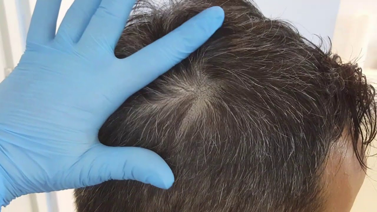 Scar SMP Healed Scalp Micropigmentation by El Truchan @ Perfect Definition